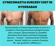gynecomastia surgery cost in hyderabad