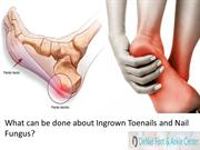 What can be done about Ingrown Toenails and Nail Fungus