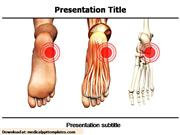 Orthopedic Powerpoint Templates