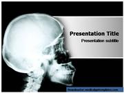 Powerpoint Templates on Osteogenesis Imp