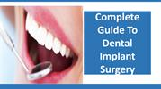 Complete Guide To Dental Implant Surgery