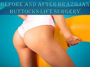 Brazilian Butt Lift Before & After Pictures Atlanta, Buckhead, ATL