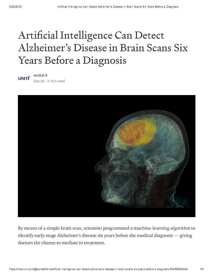 Artificial intelligence can detect Alzheimers disease in