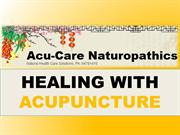 5 Health Benefits Of Acupuncture