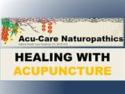 How Acupuncture Aids Overall Health
