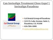 Can Invisalign Treatment Close Gaps? | Invisalign Pasadena