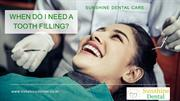When do I need a tooth filling- Sunshine Dental Whitefield  PPT (1)