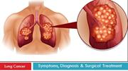 Lung Cancer : Symptoms, Diagnosis and Surgical Treatment