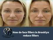 How do face fillers in Brooklyn reduce fillers