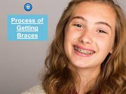 Process Of Getting Braces | Orthodontic Experts of Colorado