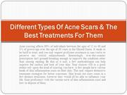 Different Types Of Acne Scars & The Best Treatments For Them