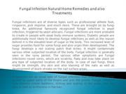 Fungal Infection Natural Home Remedies and also Treatments