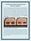 Get the Best Treatment for Dark Eye Circle Removal in Singapore
