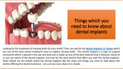Things which you need to know about Dental Implants