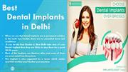 Reasons to say Yes to Dental Implants