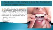 Read these tips before going for Invisalign for the Better Results