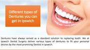 Different types of Dentures you can get in Ipswich