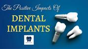 Give A Solution To Your Missing Teeth Problem