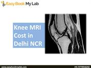 Best MRI scan centre in Delhi | Mri scan cost in Delhi, 50% discount