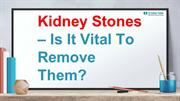 Kidney Stone :- Do all Kidney Stones Need to be Removed?