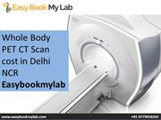 whole body pet ct scan in Delhi NCR