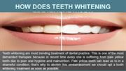 How does Teeth Whitening Treatment Work