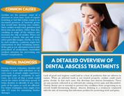 A Detailed Overview Of Dental Abscess Treatments