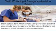 Teeth Whitening & Emergency dentist in Bristol