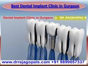 Best Dental Implant Clinic in Gurgaon