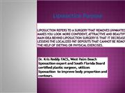 Liposuction - Kris M. Reddy, MD FACS