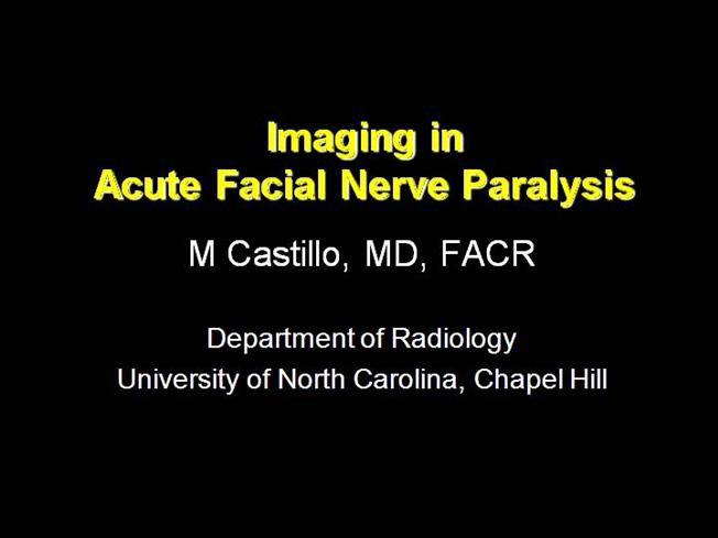 Facial Nerve Paralysis Presentation Nxpowerlite1 Authorstream