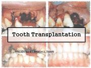 transplantation of tooth