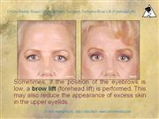 dr kris reddy reviews brow lift (forehead lift) in west