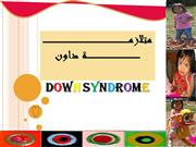 Down Syndromeمتلازمة داون