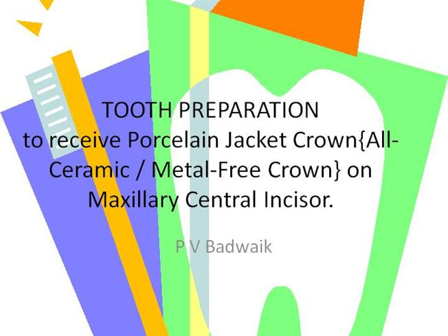 Tooth Preparation for All-Ceramic Crowns |authorSTREAM