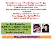 acne2The Best Acne Treatment - How To Get Rid of Zits!