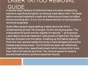 Laser Tattoo Removal Guide
