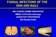 fugal infections