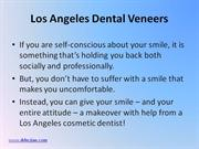 Los Angeles Dental Veneers