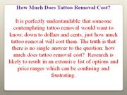 Tattoos Removal Guide