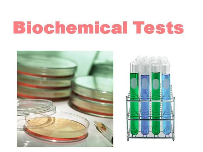 Biochemical Test - Copy |authorSTREAM