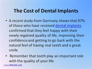 Los Angeles Dental Implants – What is the Cost of Dental Implants?