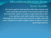 Microdermabrasion Acne Scars Guide