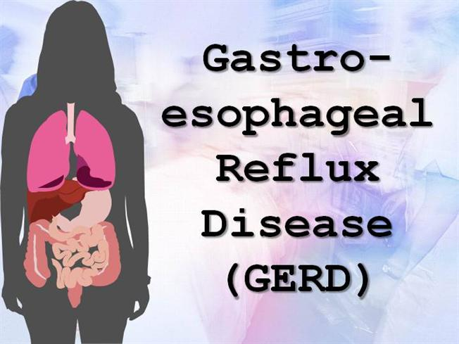 gastroesophageal reflux disease or gerd Patient education information about the risk factors and causes of gastroesophageal reflux disease (gerd) physician developed and monitored info.
