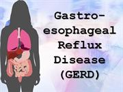 Severe Acid Reflux Pain In Back