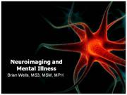 Neuroimaging and Mental Illness