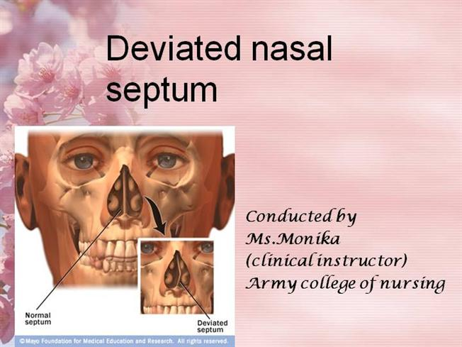 Deviated Nasal Septumppt Authorstream