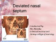 deviated nasal septum.ppt
