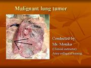 Lung cancer.ppt
