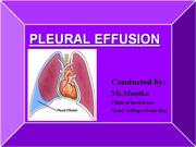 Pleural effusion.ppt